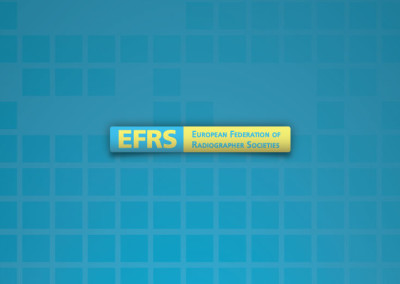 EFRS